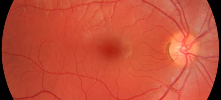 Fundus_photograph of a healthy right eye