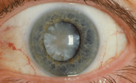 Zoomed in eye with a big cataract