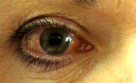One eye with Glaucoma