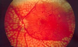 Laser Treatment of Diabetic Retinopathy