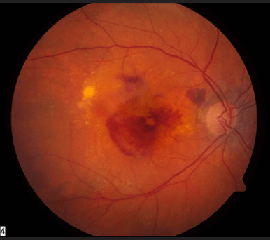 Wet Age Related Macular Degeneration