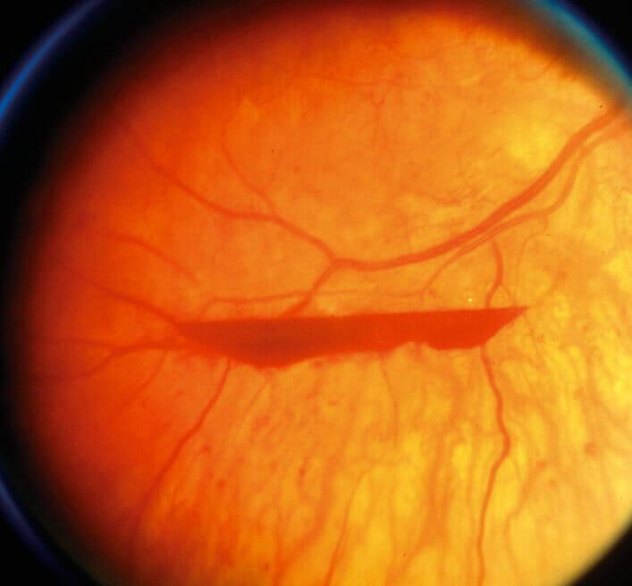 Pre retinal haemorrhage