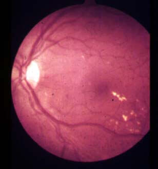 background diabetic retinopathy with maculopathy